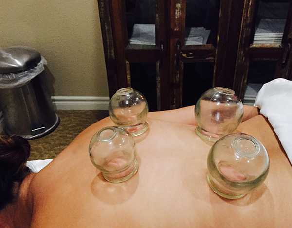 Fire cupping on patients back at Sage Health in Encinitas CA